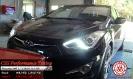 Hyundai i40 1.7 CRDI 115 HP